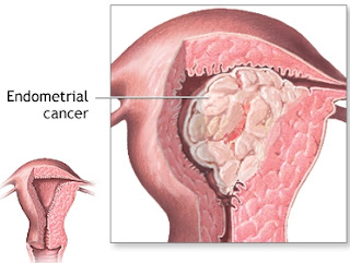 الثعبان الماليزية السرطان 1204151407277Hno.jpg