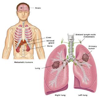 الثعبان الماليزية السرطان 120415140727XuDA.jpg