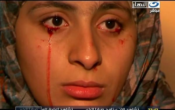 صور الفتاة التي تبكي دم 120505155047hYmR.jpg