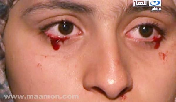 صور الفتاة التي تبكي دم 120505155047t2Rg.jpg