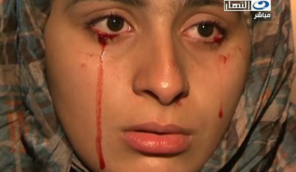 صور الفتاة التي تبكي دم 120505155047uyoj.jpg