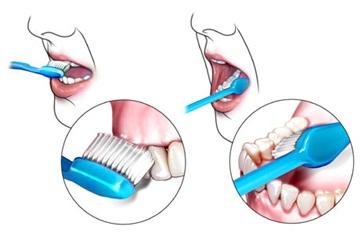 تسوس الأسنان الآمه تفقدك الراحة والاسنان