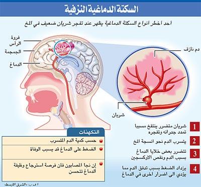 الدماغية 1212020608388GqG.jpg