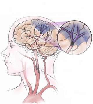 الدماغية 1212020608390JAU.jpg
